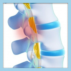 conditions-img-facet-joint-disease (1)